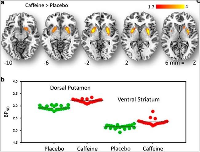 кофеин и рецепторы дофамина