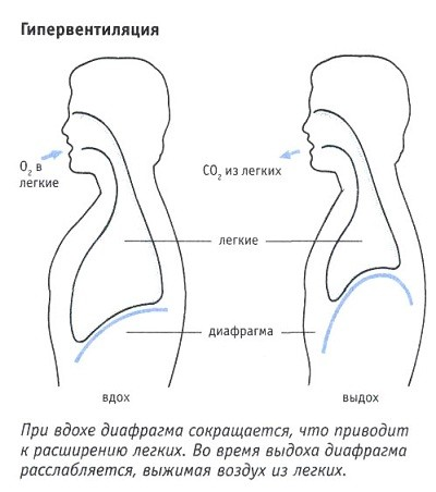 гипервентиляция легких