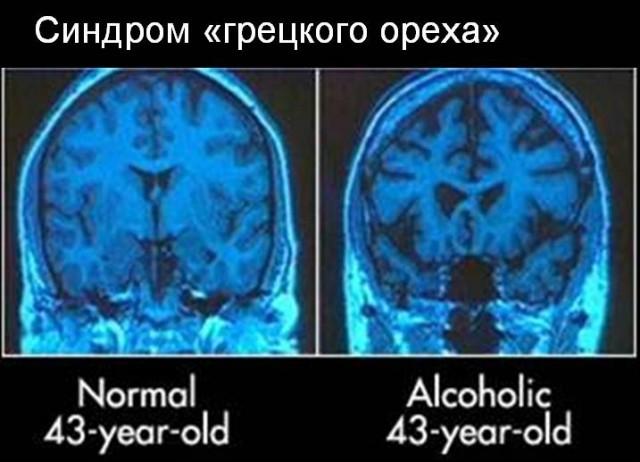 мозг высыхает