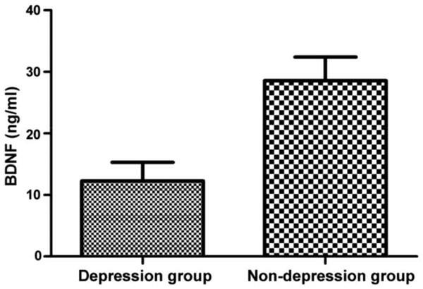 депрессия и BDNF