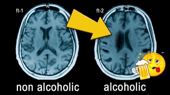 мозг алкоголизм
