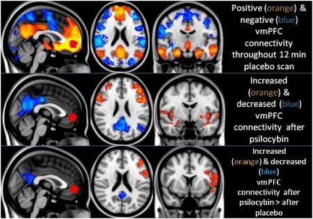 грибы галлюциногены и мозг