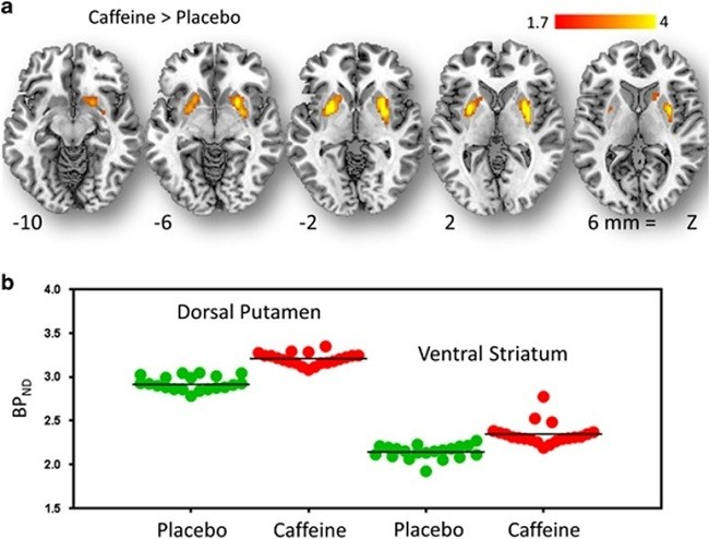 ноотропы дофамин