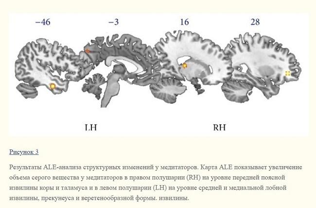 медитация структура мозга