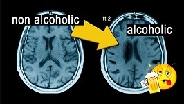 Главная Фишка Здорового Мозга